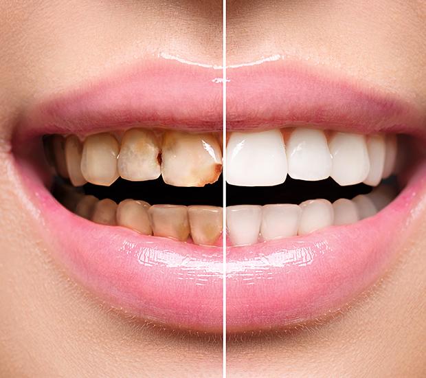 Henderson Dental Implant Restoration