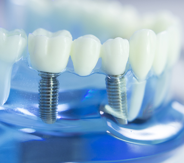Henderson Dental Implants