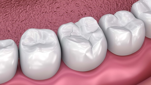 How Does Dental Sealant Treatment Work?