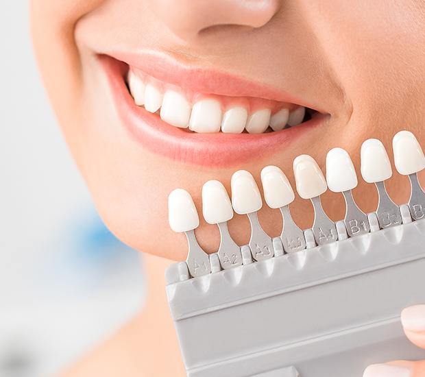 Henderson Dental Veneers and Dental Laminates